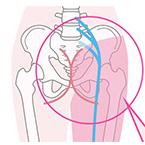 妊婦さん、産後ママの腰痛、坐骨神経痛でお悩みの方へ