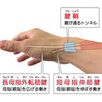 産後の手首の痛み・腱鞘炎・ばね指でお困りの方へ